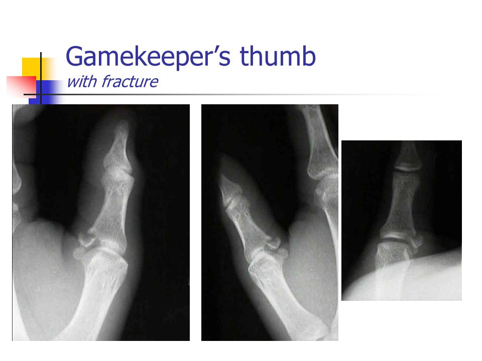 Gamekeeper's thumb with fracture