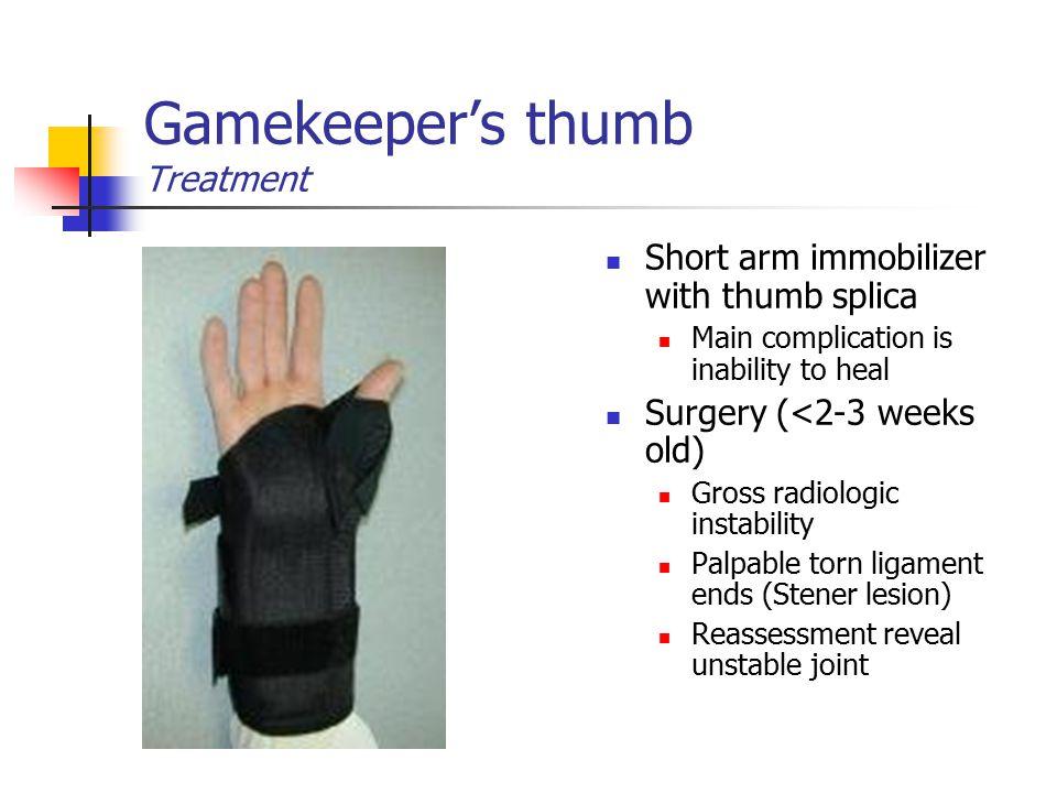 Gamekeeper's thumb Treatment