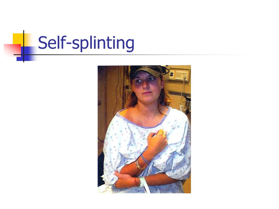 Self-splinting