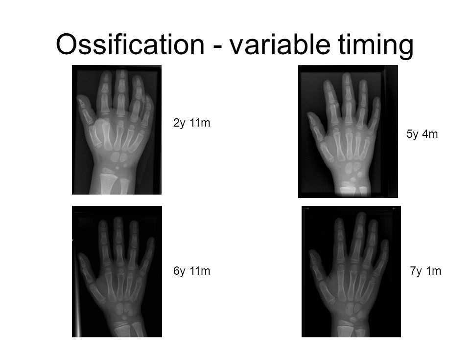 Ossification - variable timing