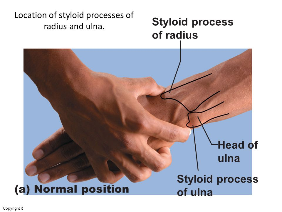 Location of styloid processes of radius and ulna.