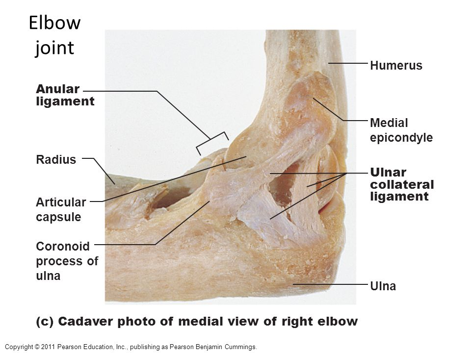 Elbow joint Humerus Anular ligament Medial epicondyle Radius Ulnar