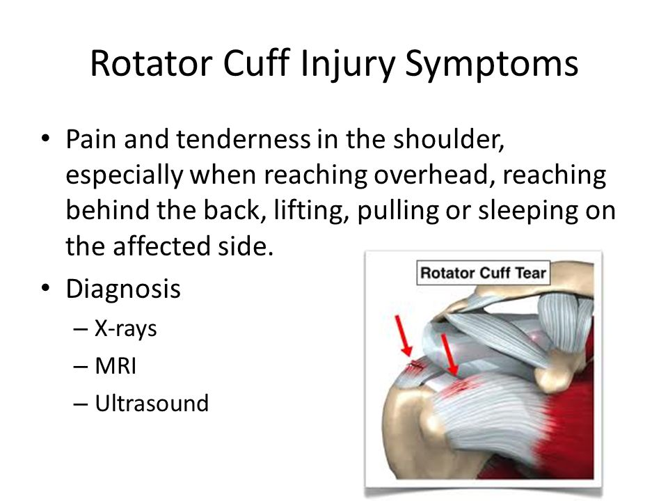 Rotator Cuff Injury Symptoms