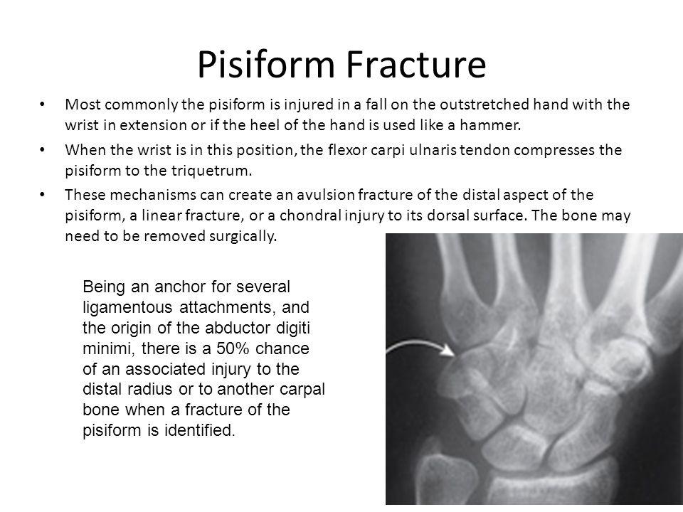 Pisiform Fracture