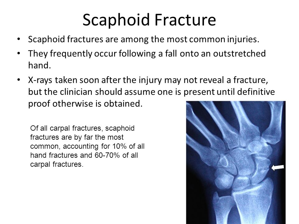 Scaphoid Fracture Scaphoid fractures are among the most common injuries. They frequently occur following a fall onto an outstretched hand.