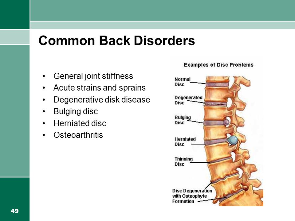 Common Back Disorders General joint stiffness
