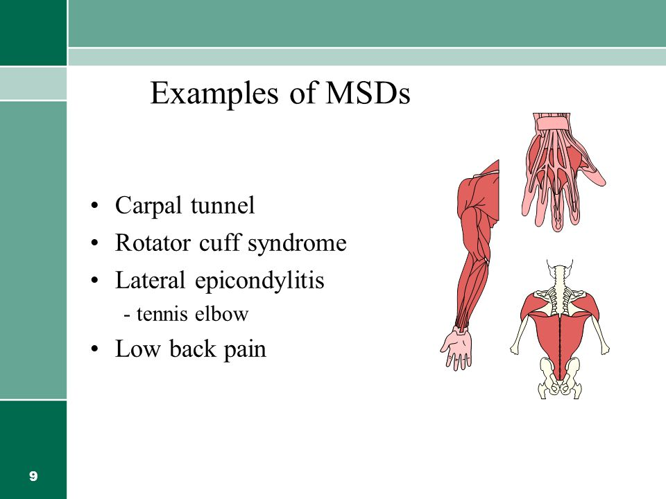 Examples of MSDs Carpal tunnel Rotator cuff syndrome