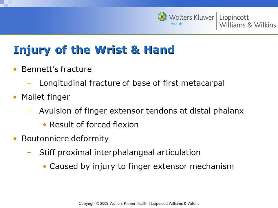 Injury of the Wrist & Hand