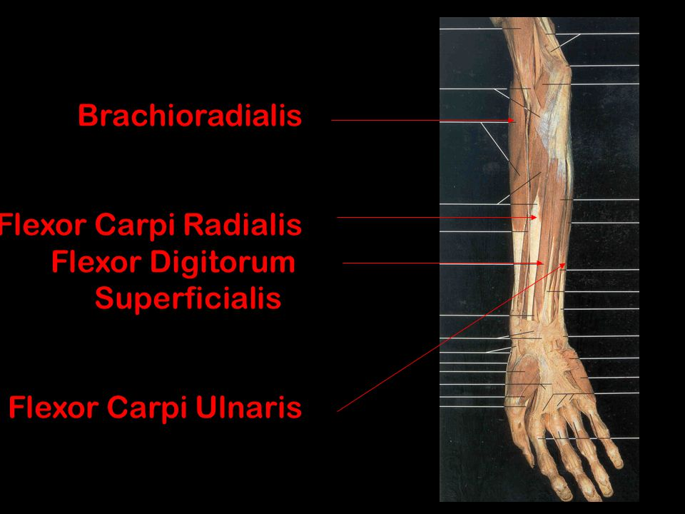 Brachioradialis Flexor Carpi Radialis Flexor Digitorum Superficialis Flexor Carpi Ulnaris
