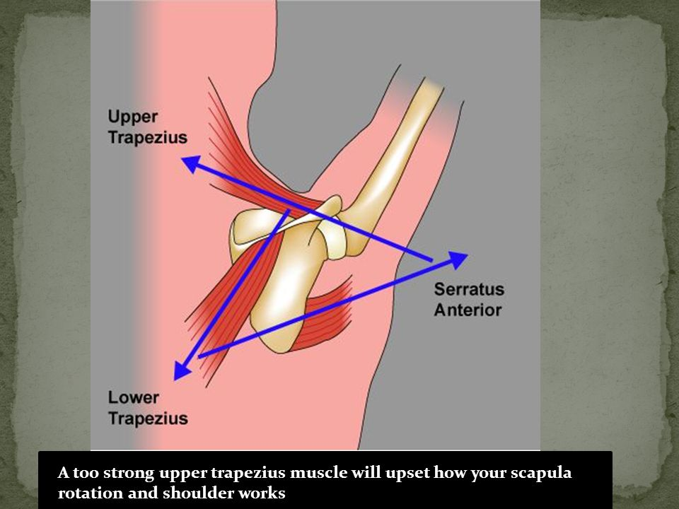 A too strong upper trapezius muscle will upset how your scapula rotation and shoulder works