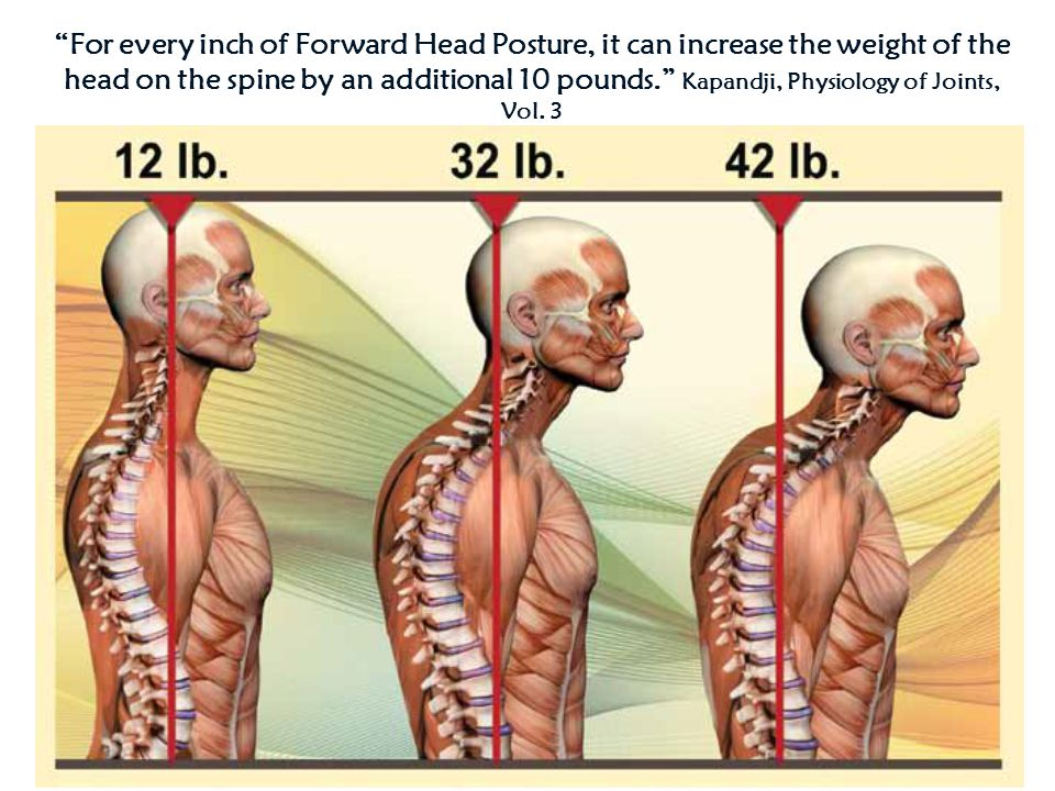 For every inch of Forward Head Posture, it can increase the weight of the head on the spine by an additional 10 pounds. Kapandji, Physiology of Joints, Vol.
