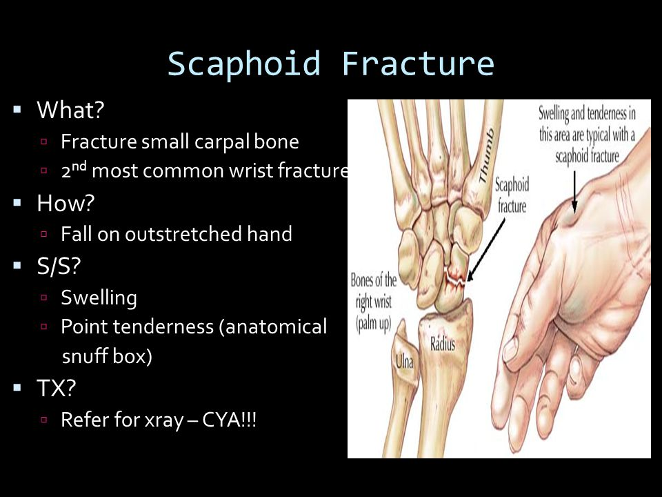 Scaphoid Fracture What How S/S TX Fracture small carpal bone