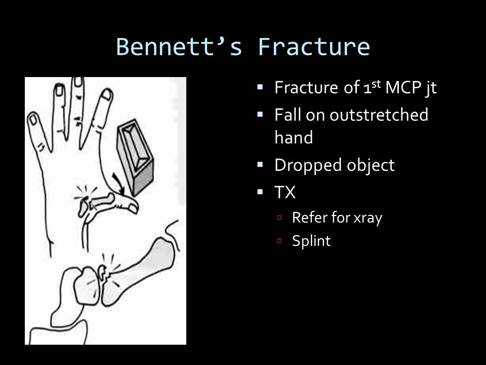 Bennett's Fracture Fracture of 1st MCP jt Fall on outstretched hand