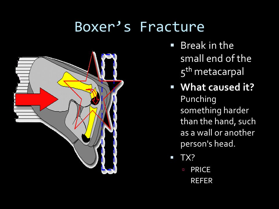 Boxer's Fracture Break in the small end of the 5th metacarpal