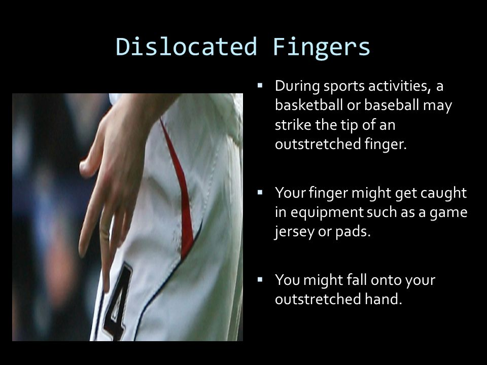 Dislocated Fingers During sports activities, a basketball or baseball may strike the tip of an outstretched finger.
