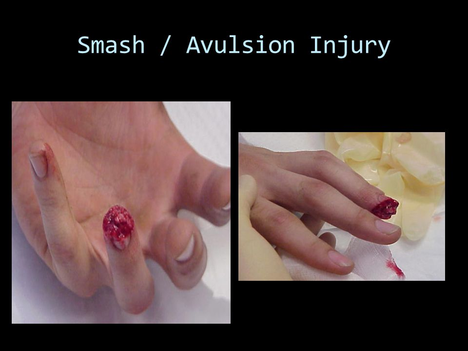 Smash / Avulsion Injury