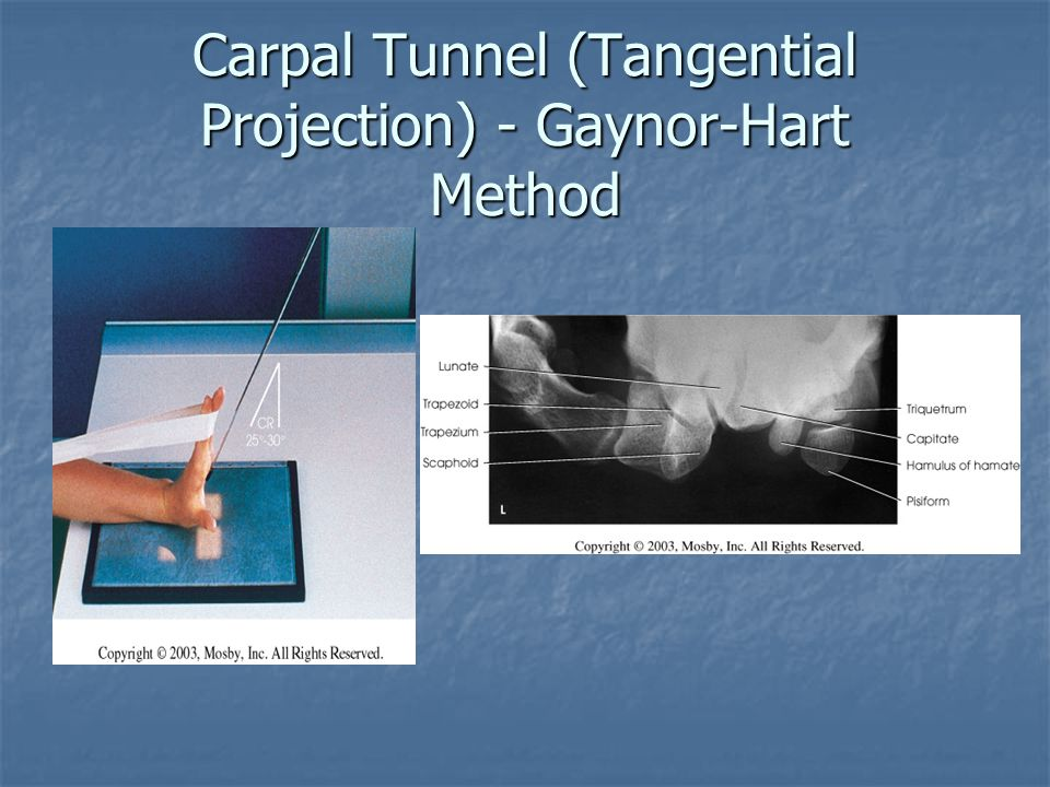 Carpal Tunnel (Tangential Projection) - Gaynor-Hart Method