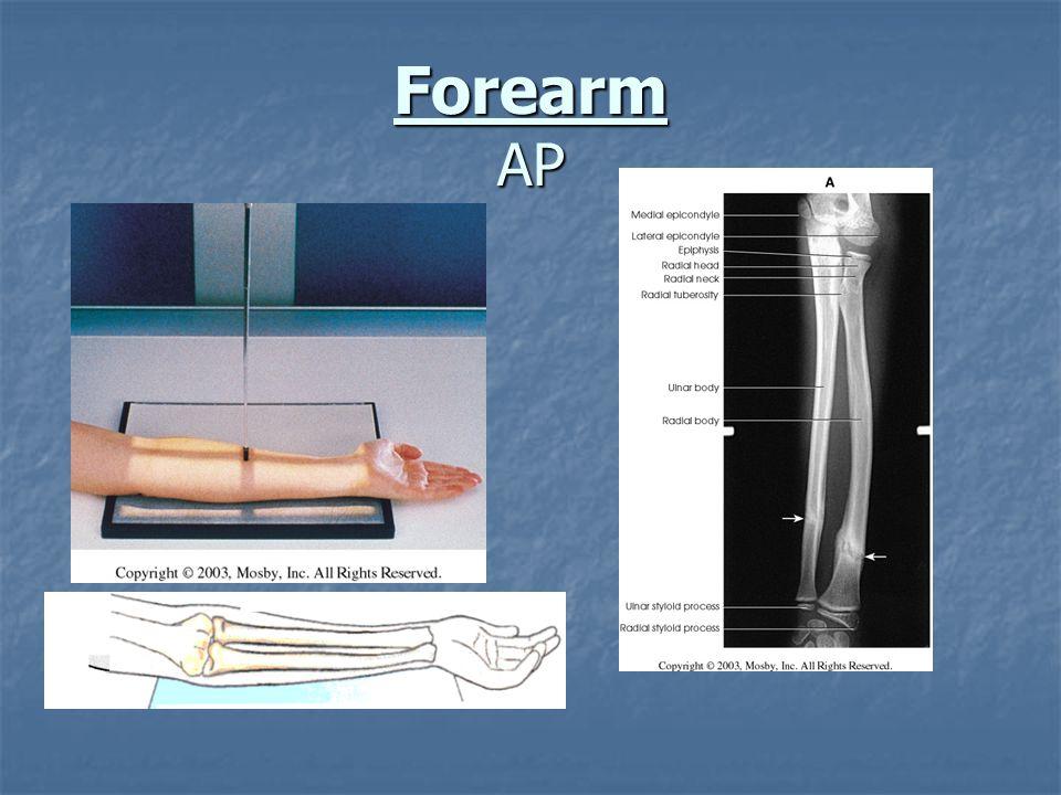 Forearm AP