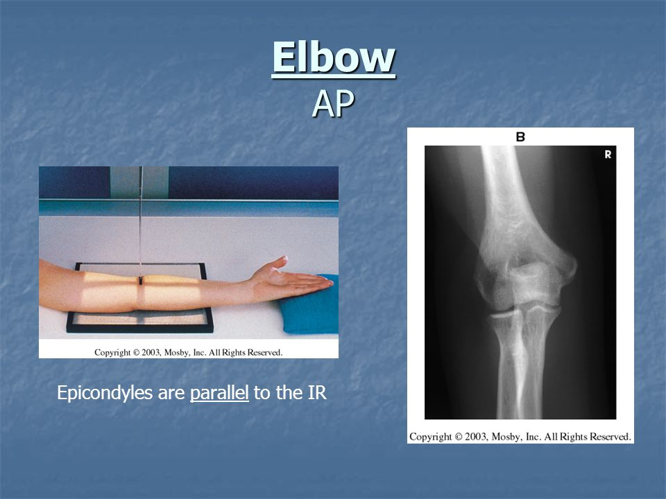 Elbow AP Epicondyles are parallel to the IR