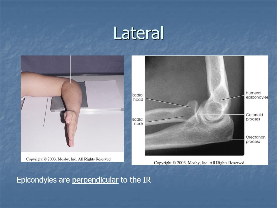 Lateral Epicondyles are perpendicular to the IR