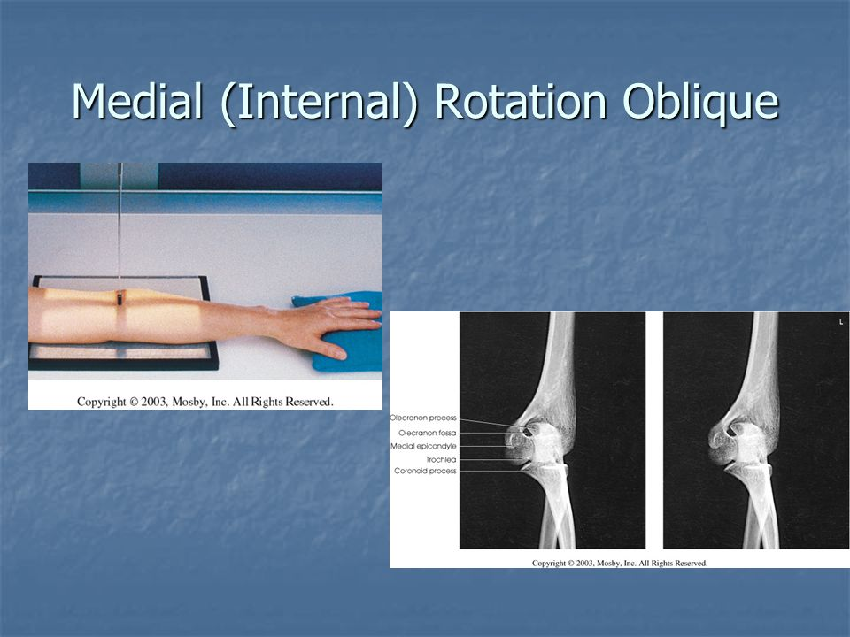 Medial (Internal) Rotation Oblique