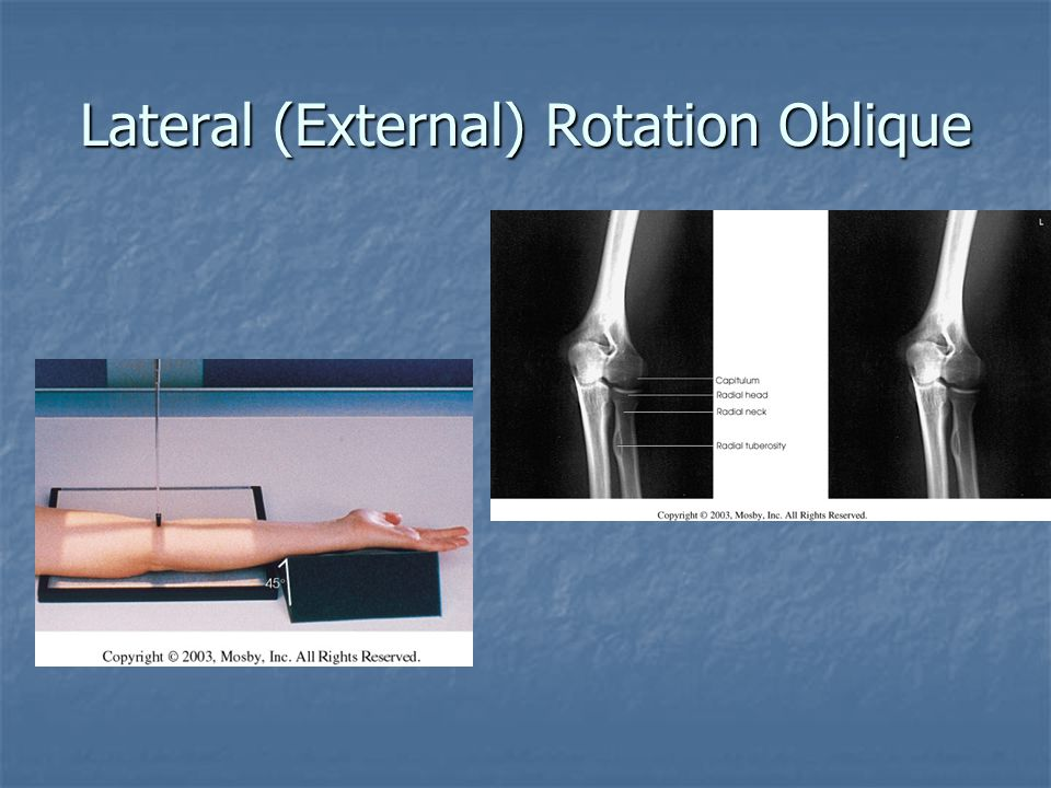 Lateral (External) Rotation Oblique