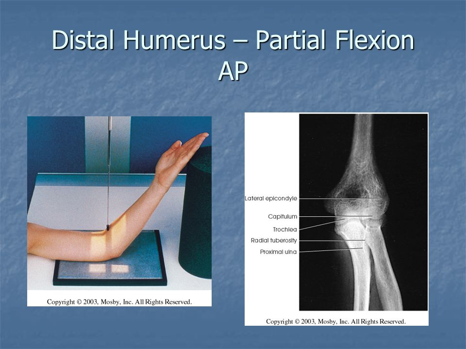Distal Humerus – Partial Flexion AP