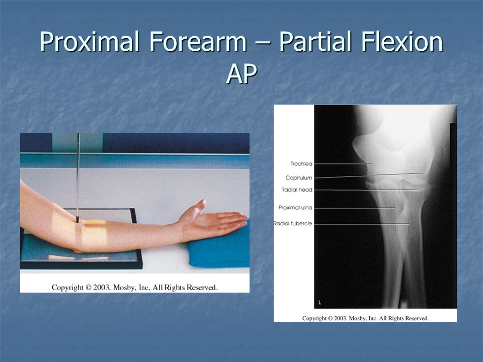 Proximal Forearm – Partial Flexion AP