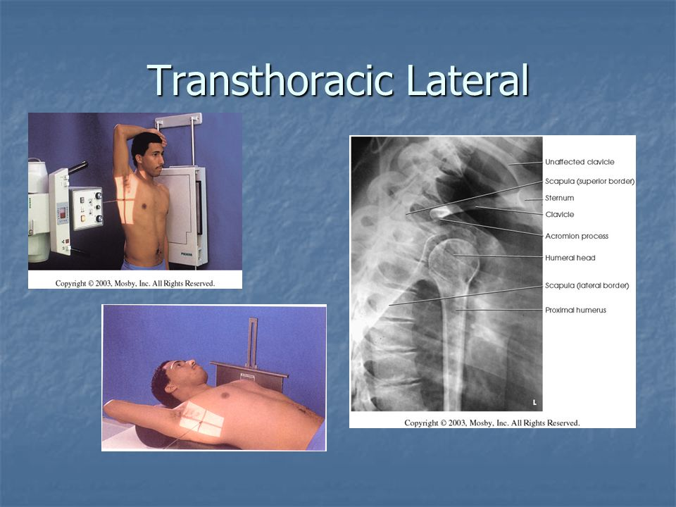 Transthoracic Lateral