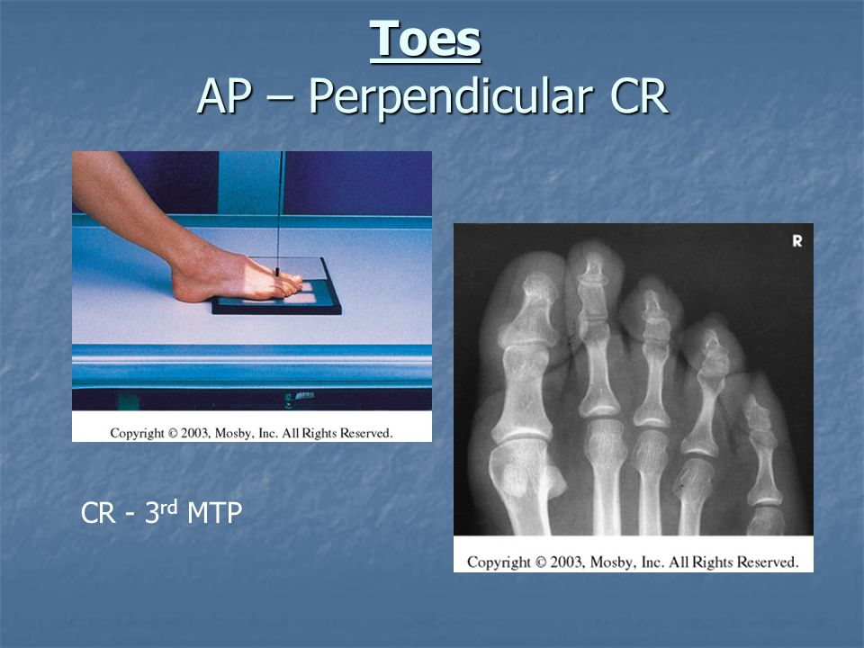 Toes AP – Perpendicular CR