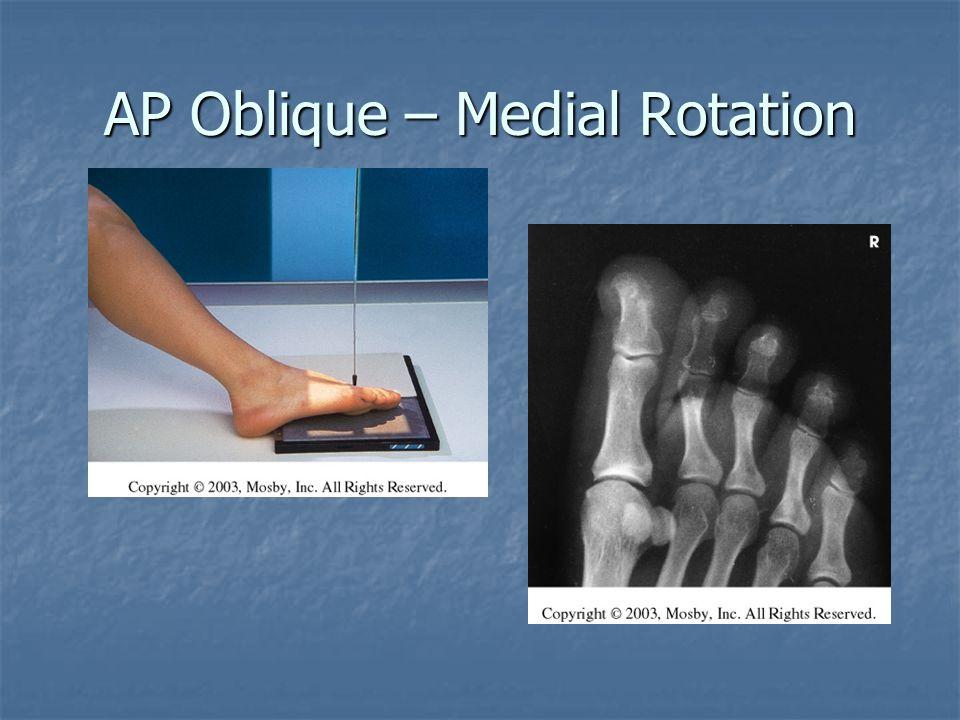 AP Oblique – Medial Rotation