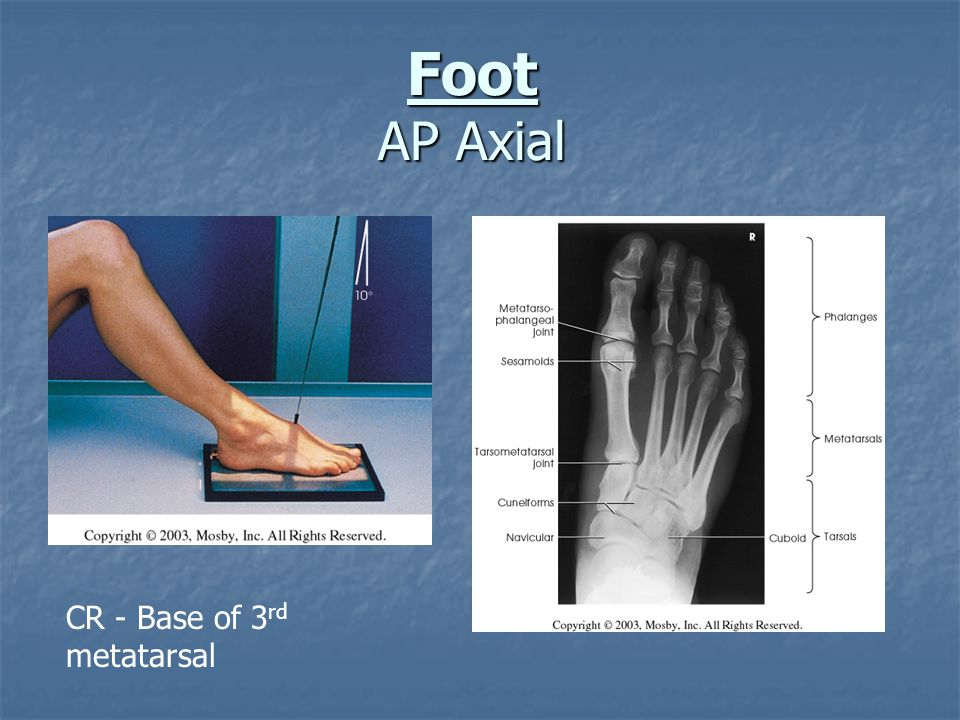 Foot AP Axial CR - Base of 3rd metatarsal