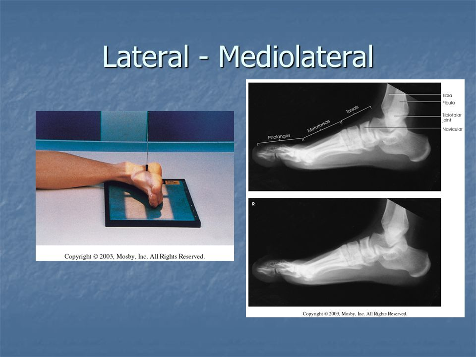 Lateral - Mediolateral