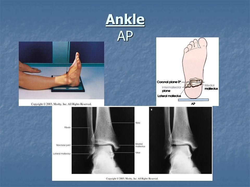 Ankle AP