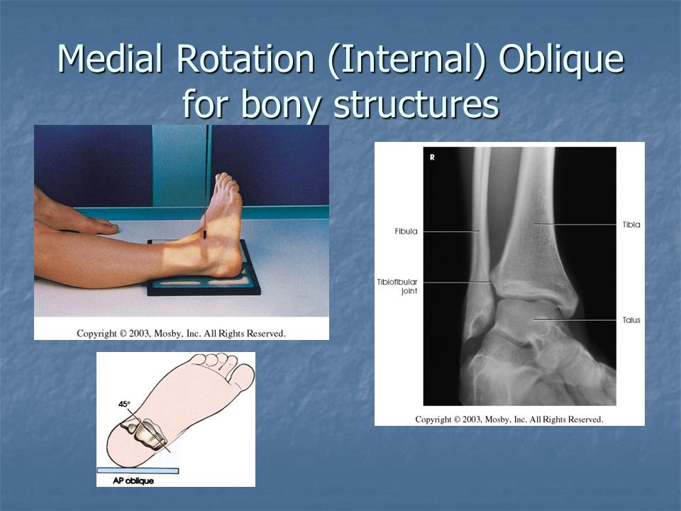 Positioning Review Of Upper And Lower Extremities Ppt