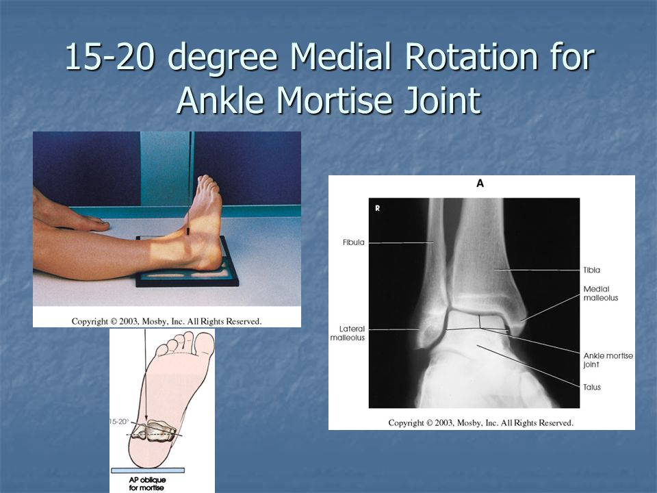 15-20 degree Medial Rotation for Ankle Mortise Joint