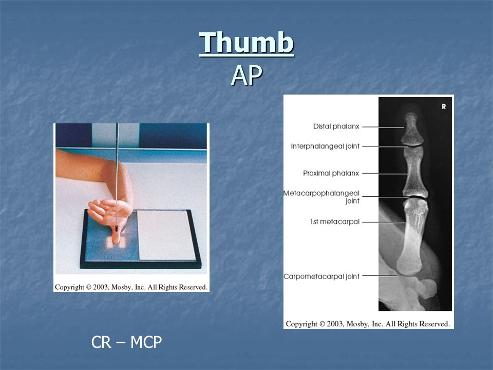 Thumb AP CR – MCP
