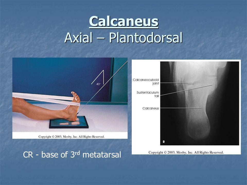 Calcaneus Axial – Plantodorsal