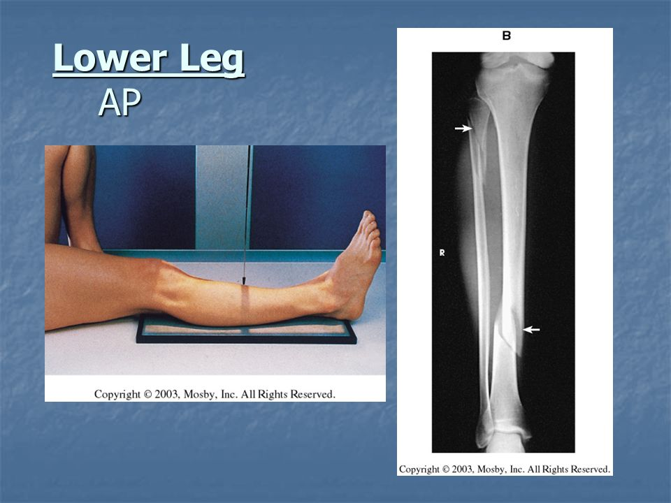 Lower Leg AP