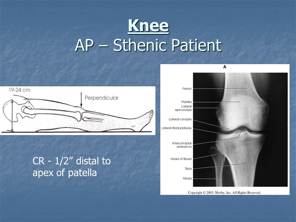 Knee AP – Sthenic Patient