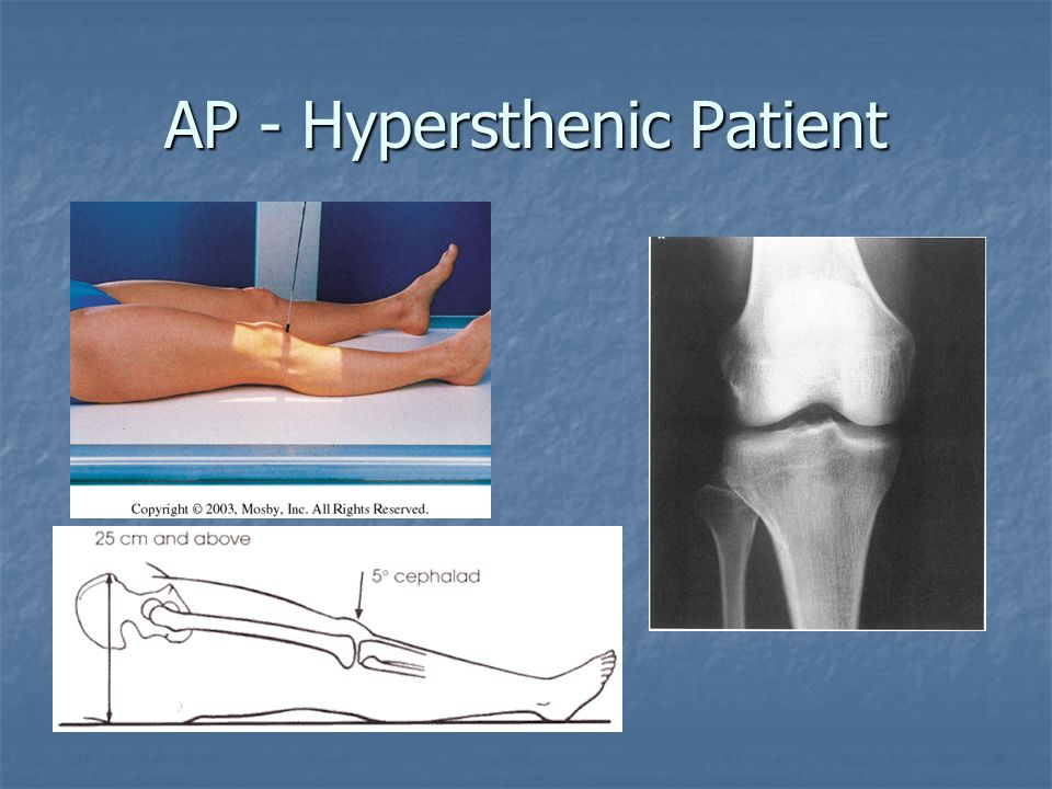 AP - Hypersthenic Patient