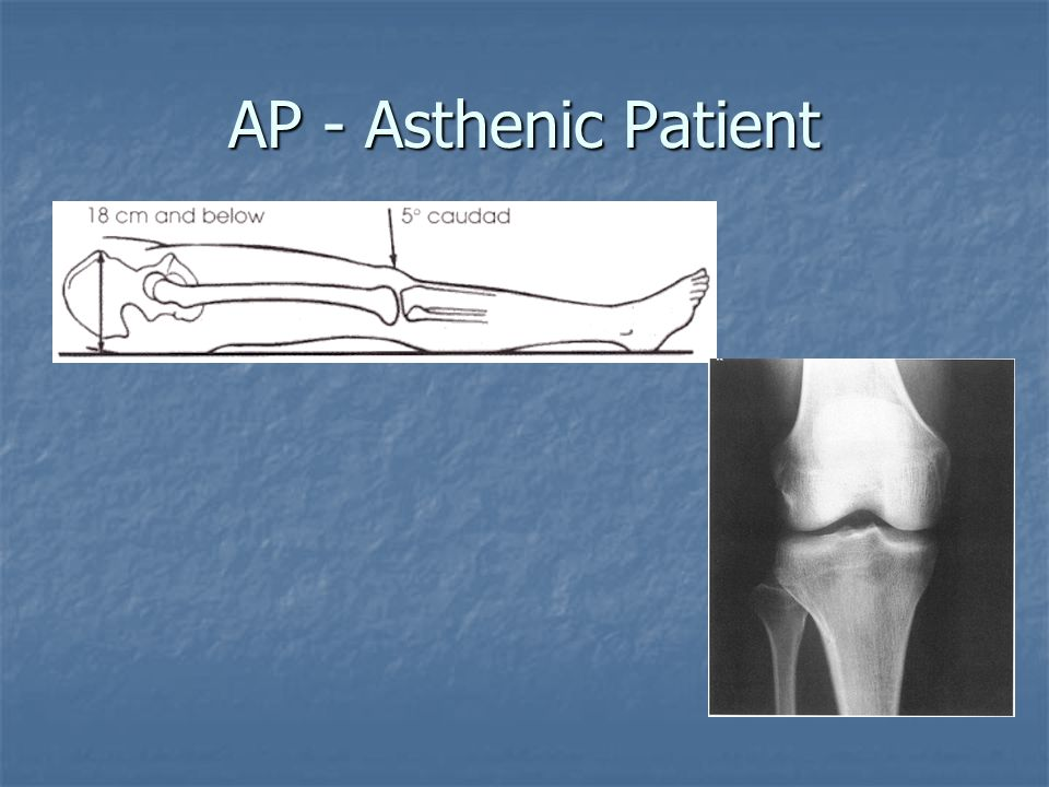 AP - Asthenic Patient