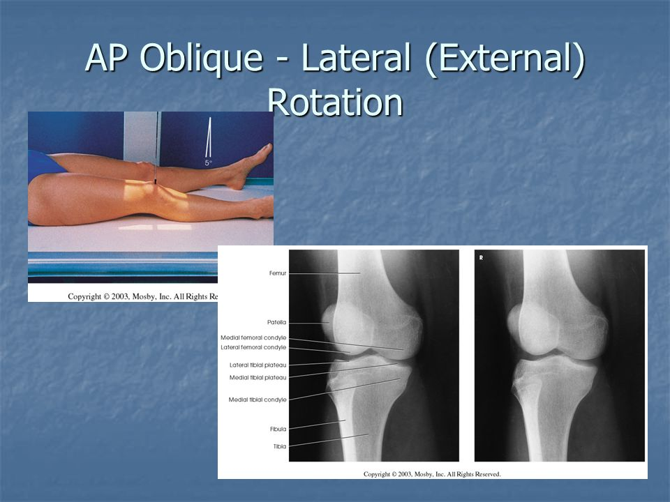 AP Oblique - Lateral (External) Rotation