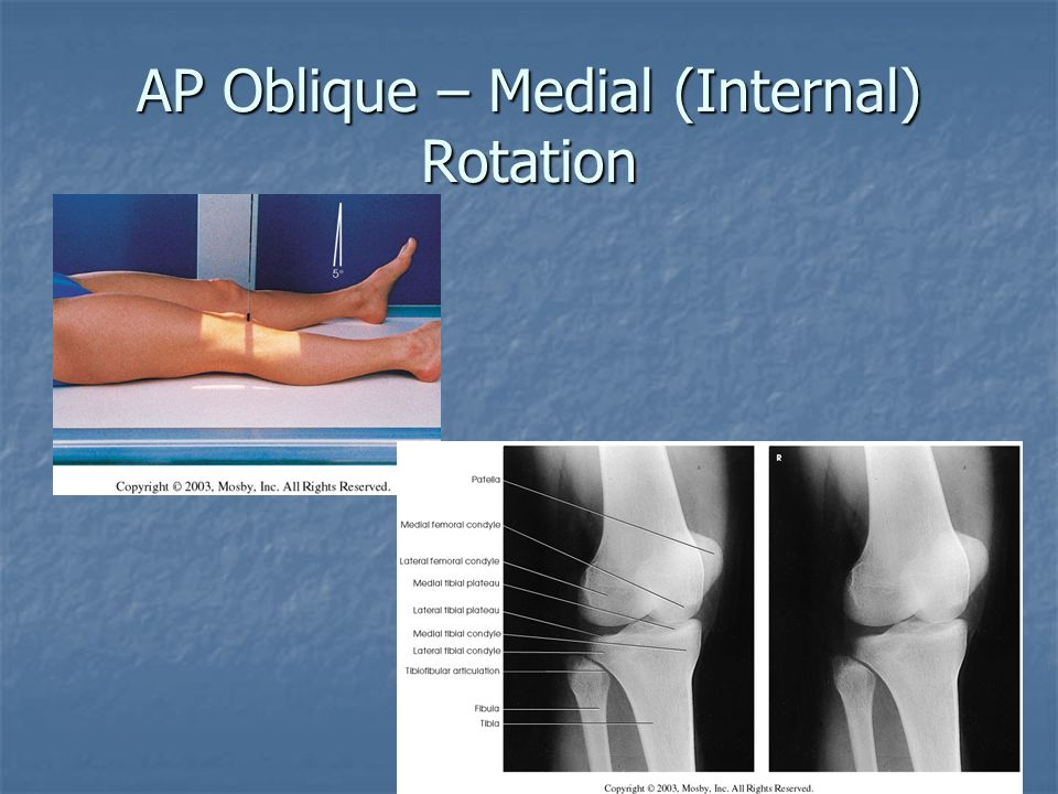 AP Oblique – Medial (Internal) Rotation