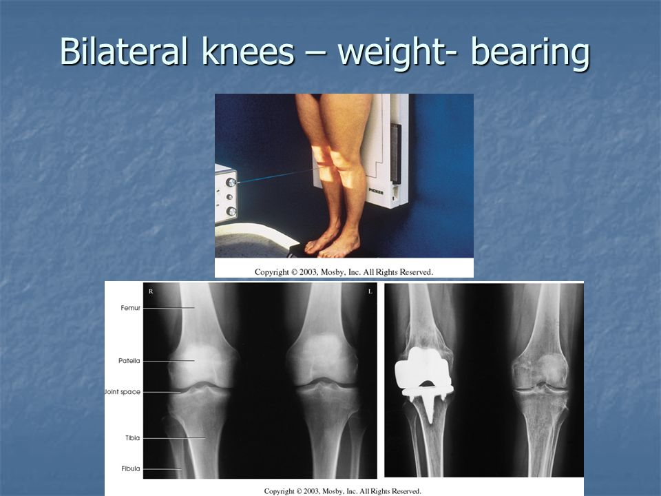 Bilateral knees – weight- bearing