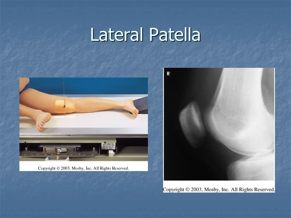 Lateral Patella