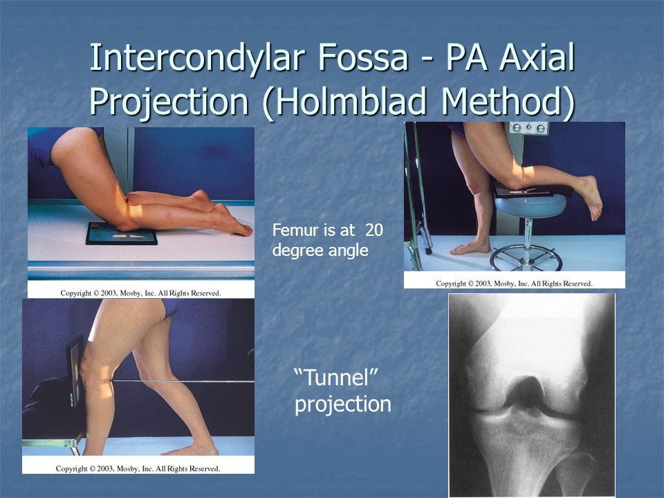 Intercondylar Fossa - PA Axial Projection (Holmblad Method)