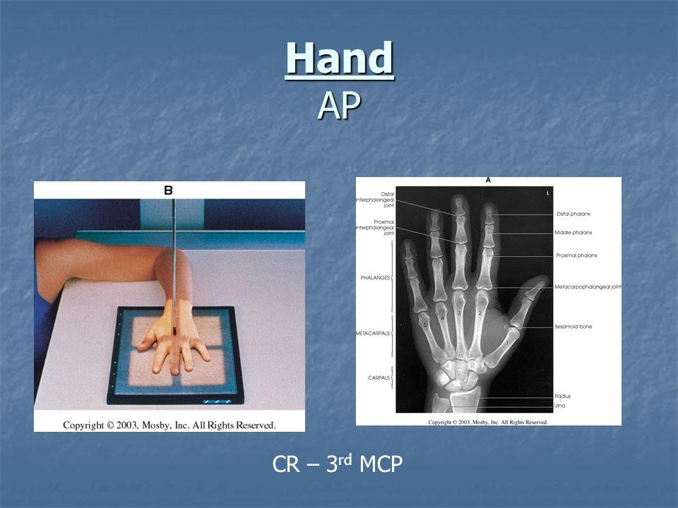 Hand AP CR – 3rd MCP