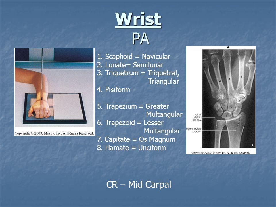 Wrist PA CR – Mid Carpal 1. Scaphoid = Navicular 2. Lunate= Semilunar