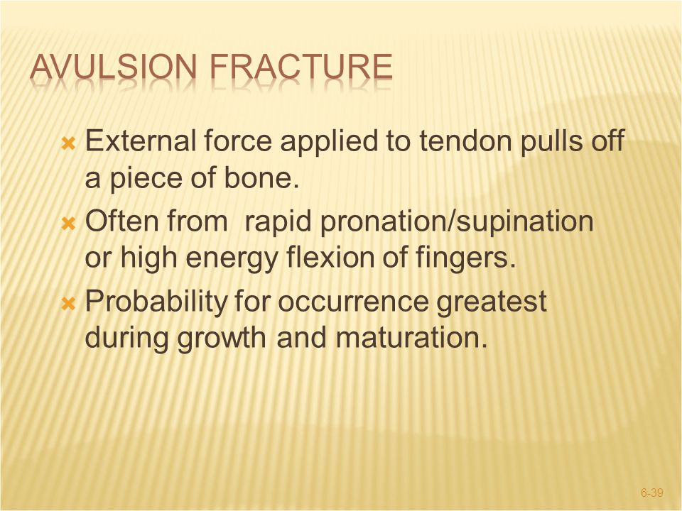 Avulsion Fracture External force applied to tendon pulls off a piece of bone.